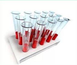 اختبار الدم (البيوكيميائية)